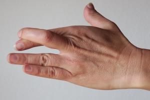 """""""Aus-Xen"""" – gekreuzte Finger als schneller Heilimpuls"""